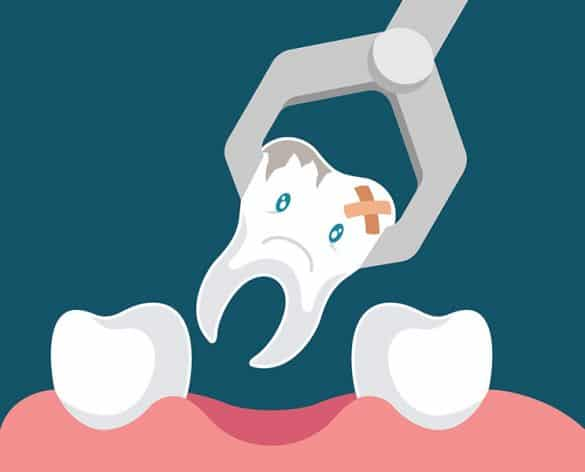 tooth extraction in New Port Richey